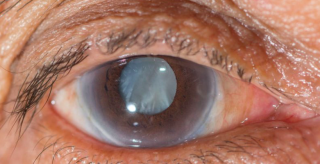 cataract-eye-exam