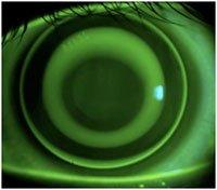 custom hard contact lenses